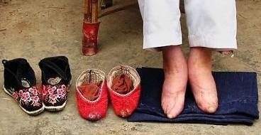 性效仿中国古代裹小脚陋习 削足适履 为穿高跟鞋整形足部 揭秘惊悚