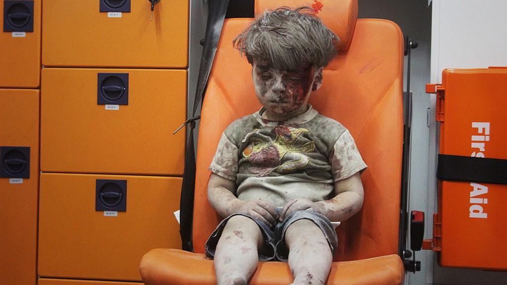 叙利亚被炸小男孩的照片是摆拍?真相令人心寒