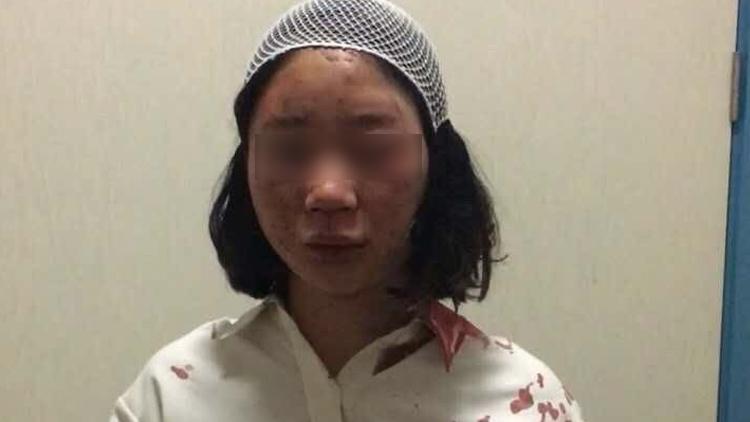 女游客自曝昆明街头被打头缝6针 官方介入调查