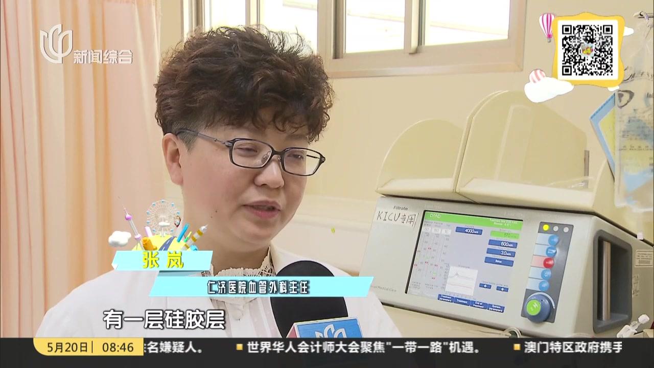 """晨间门诊室:仁济医院首用""""即穿型""""人工血管内瘘"""