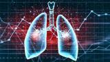 上海肿瘤医院提出肺癌持续优化治疗策略