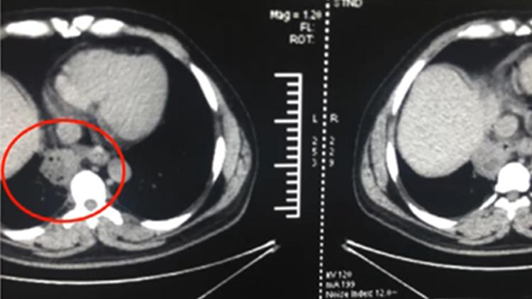 男子吞鱼刺4个月胸腔游走到肺部 严重感染险没命