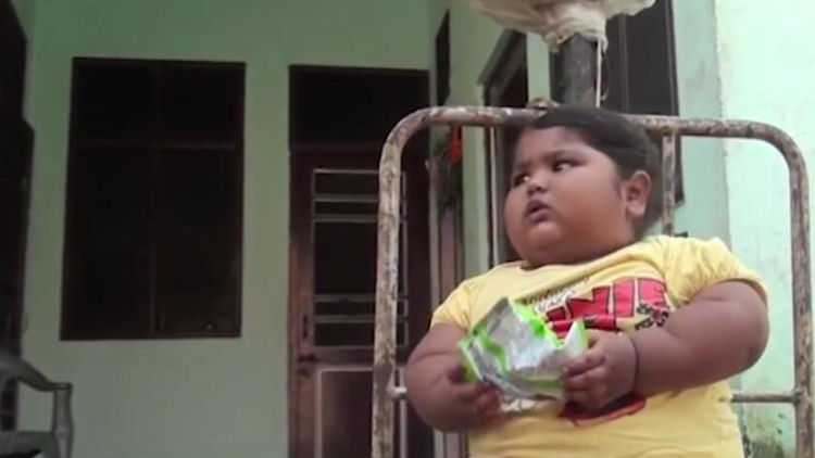 家要吃垮了!1岁女婴得怪病 每天吃48顿重达50斤