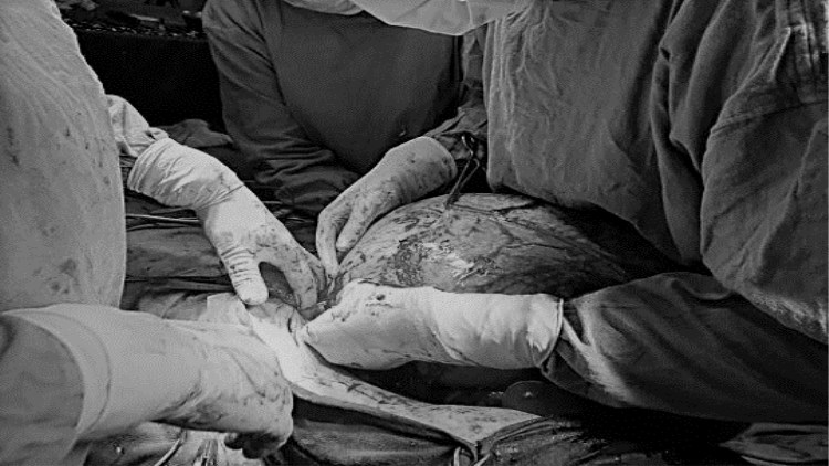 16岁印度少女停经 子宫长15公斤巨瘤吓呆医生