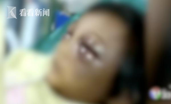 视频|5岁女孩遭家暴双眼肿得不忍直视 竟还替母亲求情