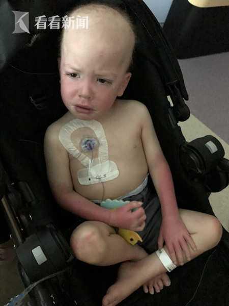 4岁弟弟血癌化疗呕吐 5岁姐姐马桶前帮拍背安抚 沛县人才网
